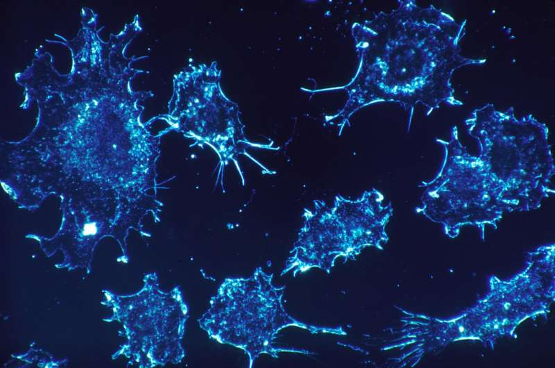 New therapies possible after finding immune cell changes in lymphoplasmacytic lymphoma